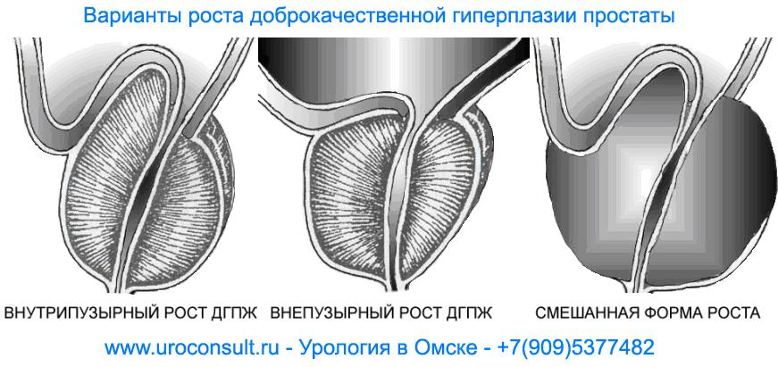 Резекция Простаты Трансуретральная